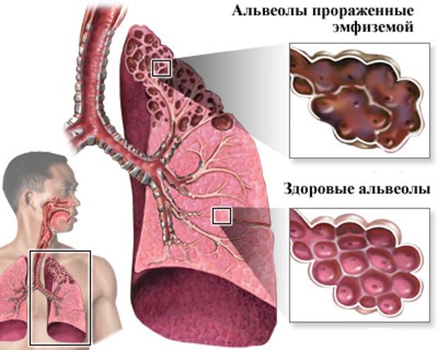Чем опасна буллезная эмфизема легких