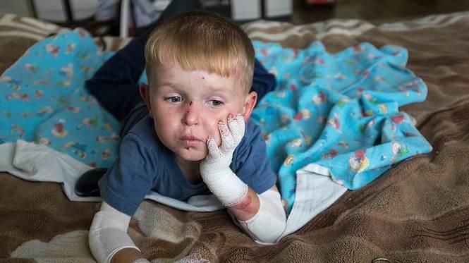 Дети-бабочки – когда ты чувствуешь боль всей кожей