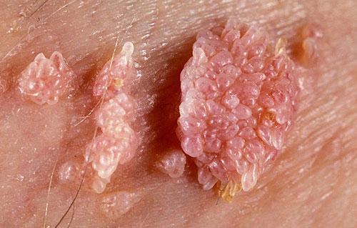 Симптомы остроконечного кондиломатоза