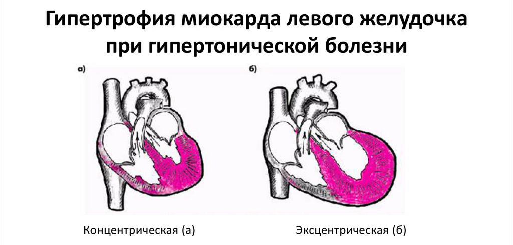 Большое сердце (кардиомегалия): что это такое, симптомы и лечение
