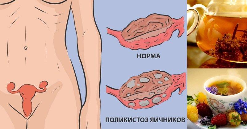 Как вылечить бесплодие при синдроме поликистозных яичников