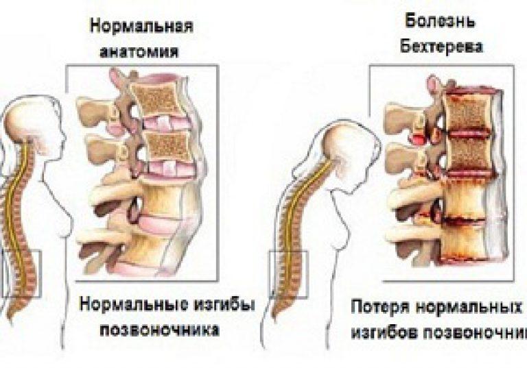 Болезнь бехтерева. причины, симптомы диагностика и лечение