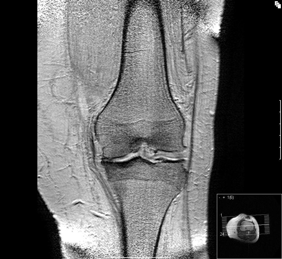 Строение суставов человека. виды суставов (анатомия человека)