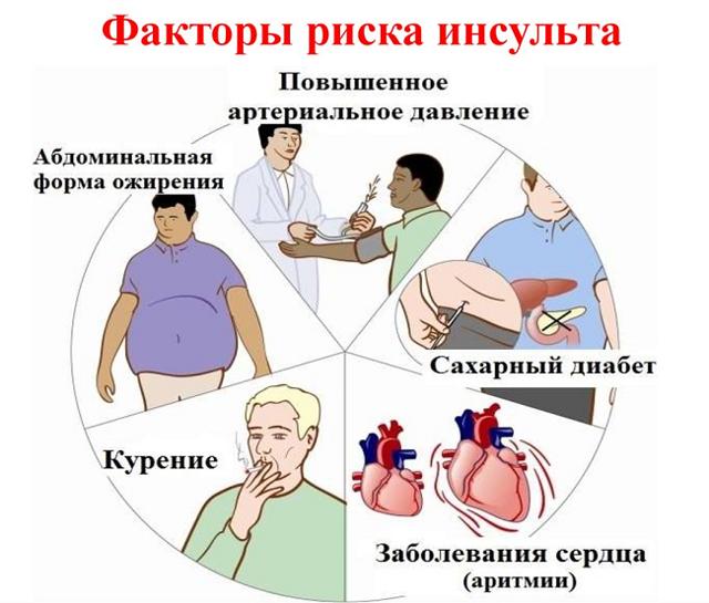 Стволовой инсульт - что это, причины, последствия, лечение