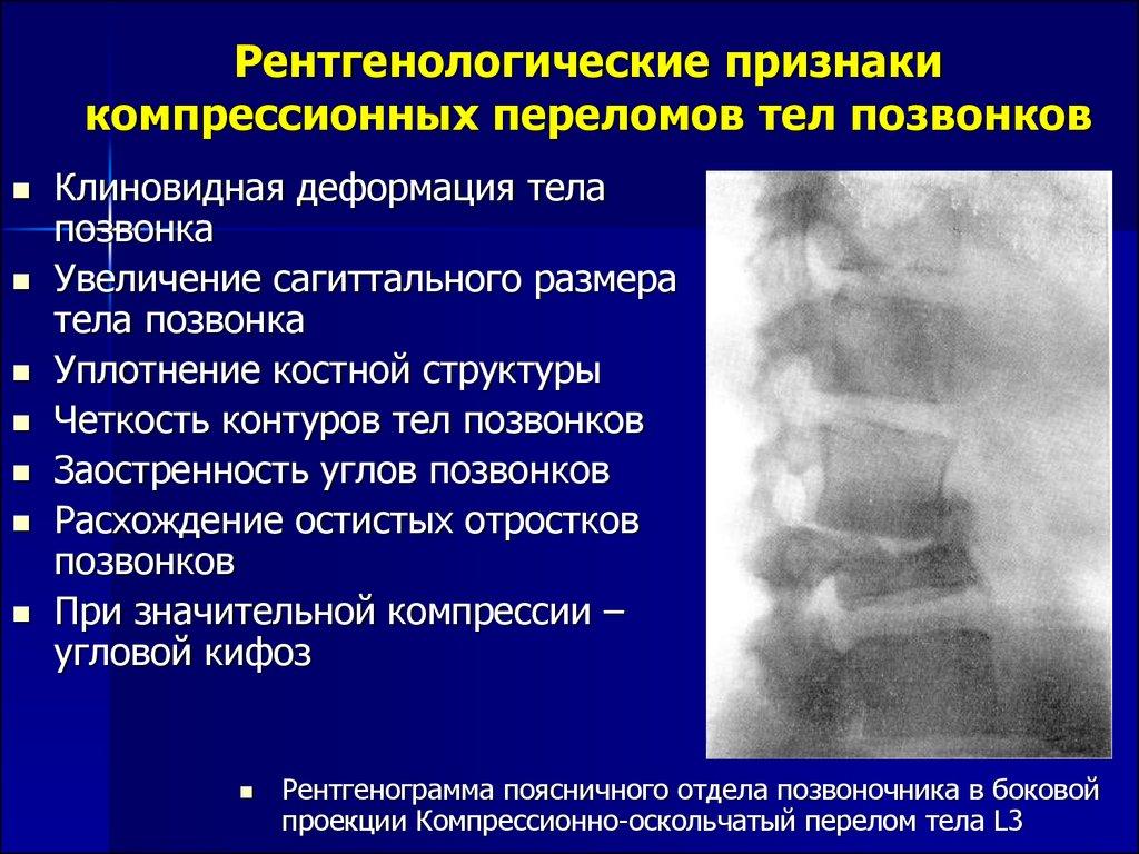 Компрессионный перелом позвоночника в поясничном отделе: причины, симптомы, способы лечения и реабилитации
