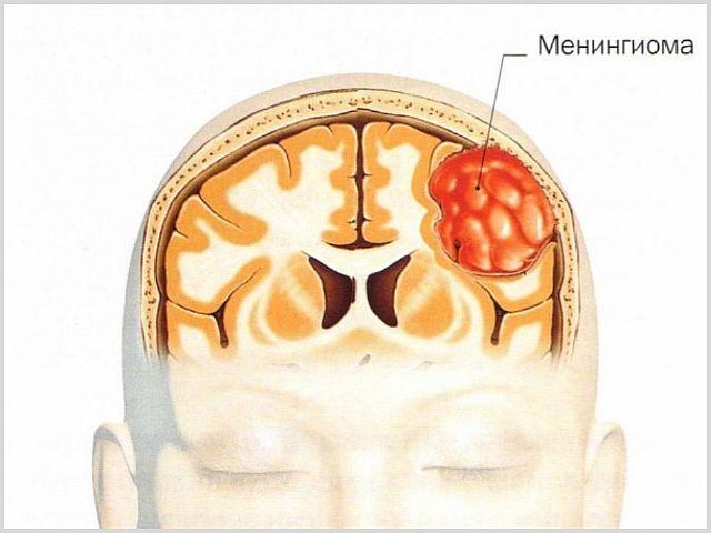 Менингиома головного мозга: симптомы, диагностика и лечение