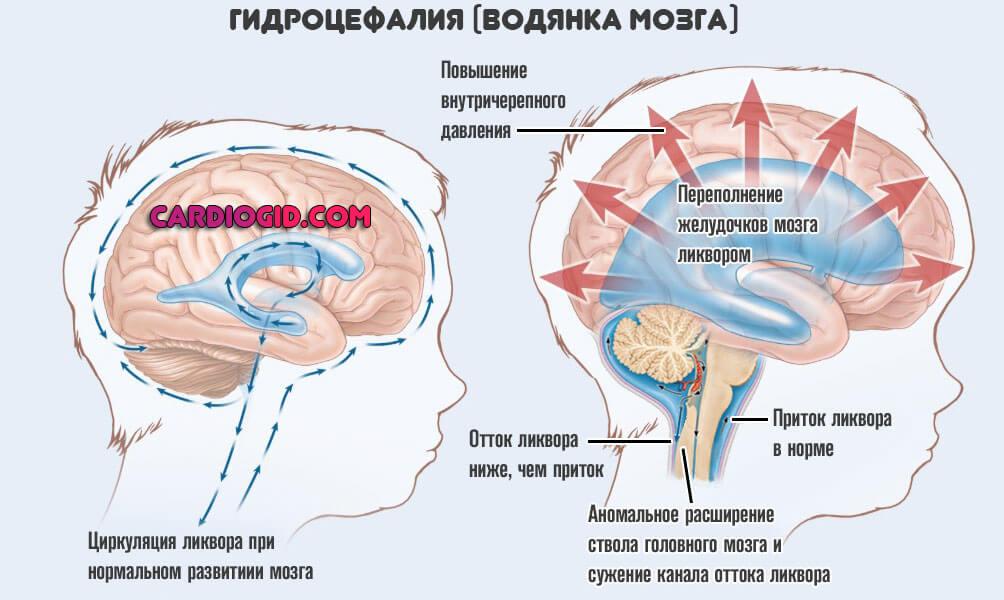 Гидроцефалия - не приговор! | милосердие.ru