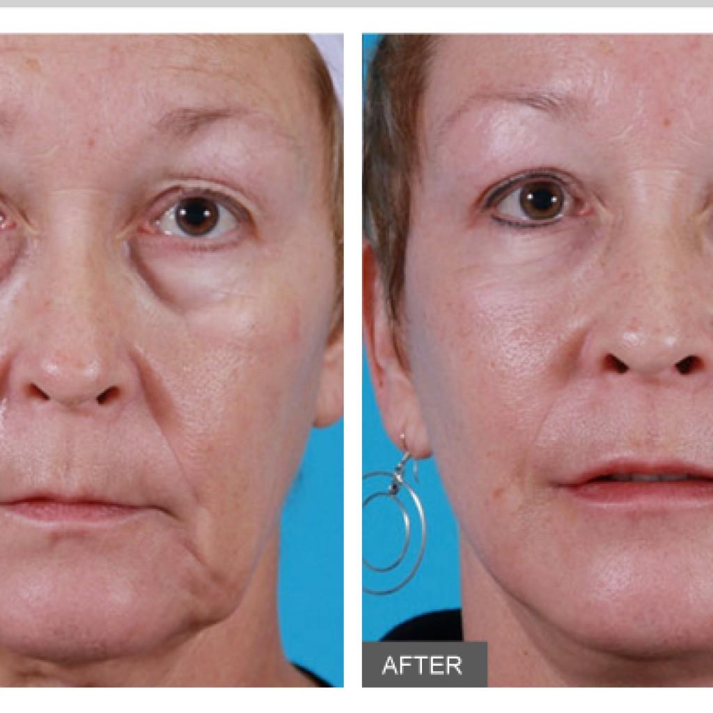 Омоложение кожи с помощью филлеров. вред и польза процедуры