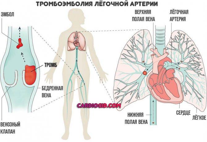 Образование тромбов: причины, симптомы, лечение