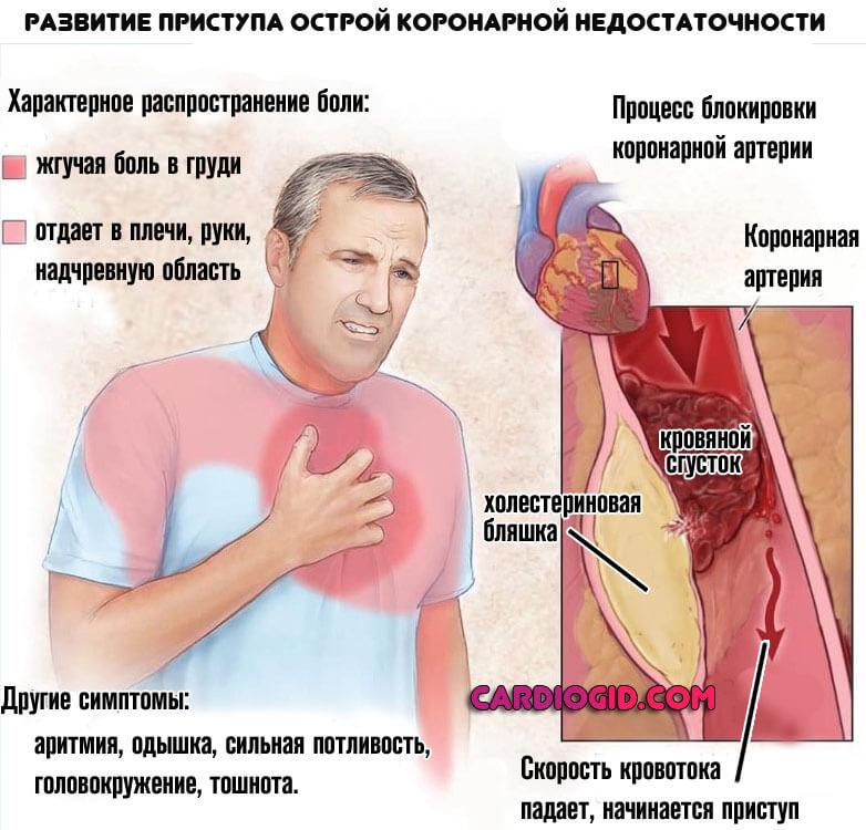 Стенокардия (грудная жаба): симптомы, лечение, ограничения для пациента