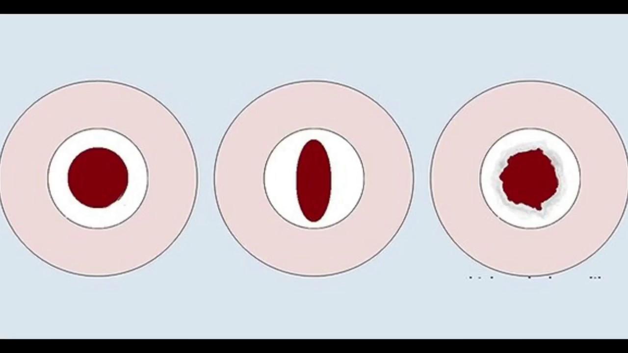 Лишение девственности (дефлорация) в клинике