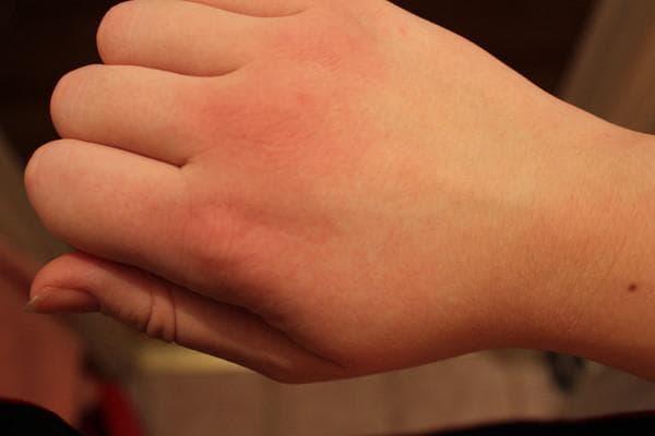 Как вылечить цыпки на руках | заболевания кожи