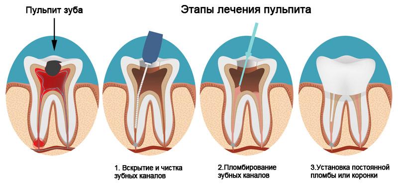 Пульпа зуба: понятие, заболевания и их лечение.