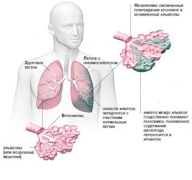 Пневмосклероз легких | eurolab | пульмонология