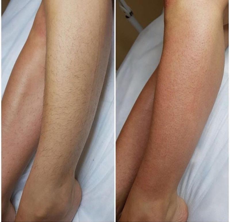 Лазерное удаление волос: как работает, как делается эпиляция и на сколько эффективна
