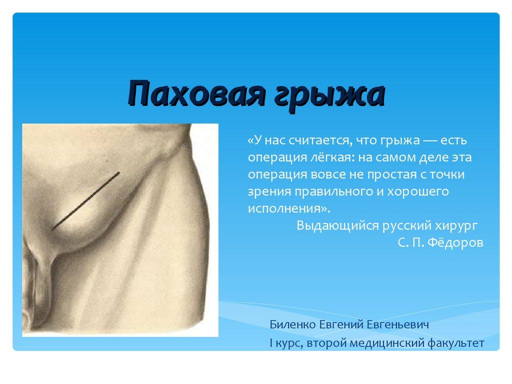 Лечение паховой грыжи у мужчин