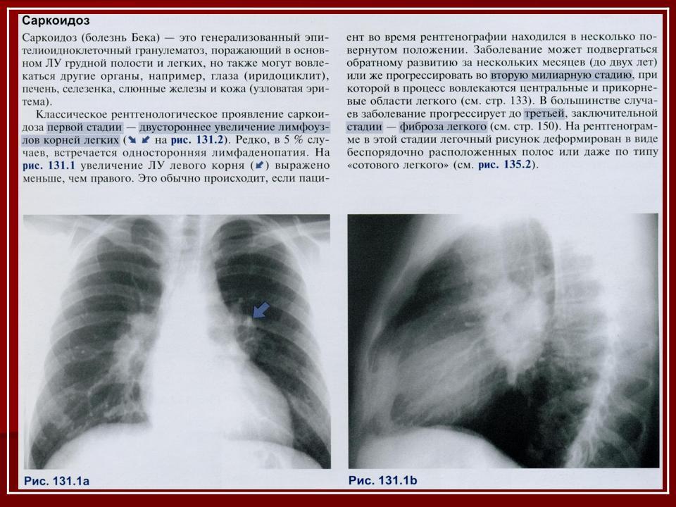 Лимфаденопатия шейных лимфоузлов: что это такое, причины и лечение