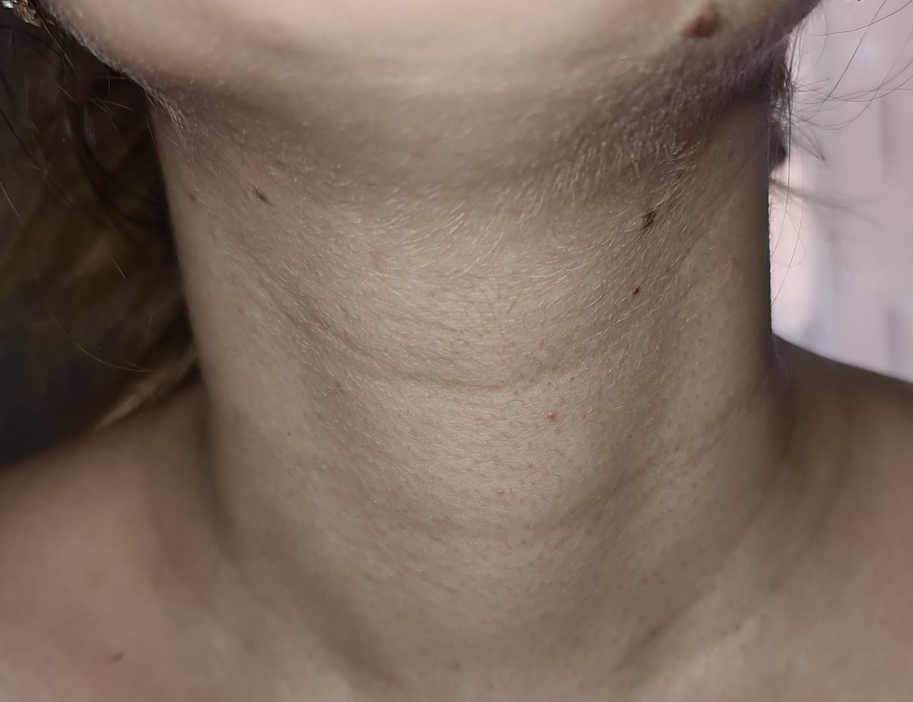 Лимфоузлы в груди у женщин и мужчин: расположение и причины воспаления