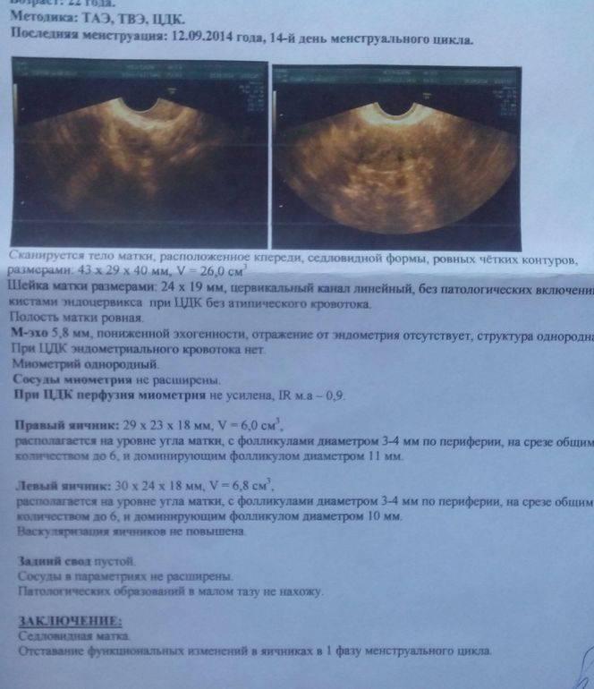 Желтое тело в яичнике на узи, фото и видео