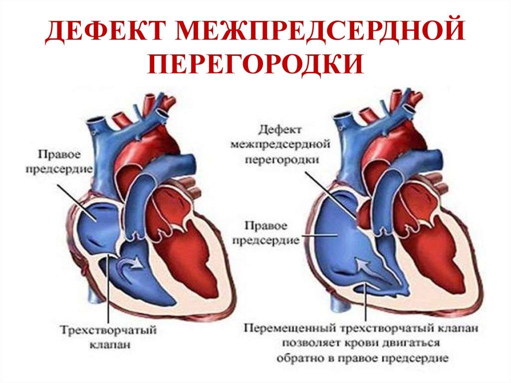 Особенности проявлений порока сердца и его влияние на качество жизни человека