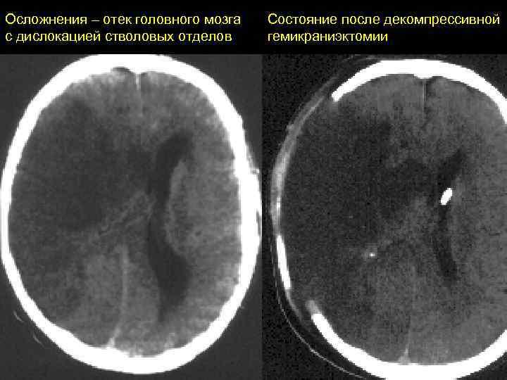 Отек мозга: причины и формы, симптомы, лечение, осложнения и прогноз