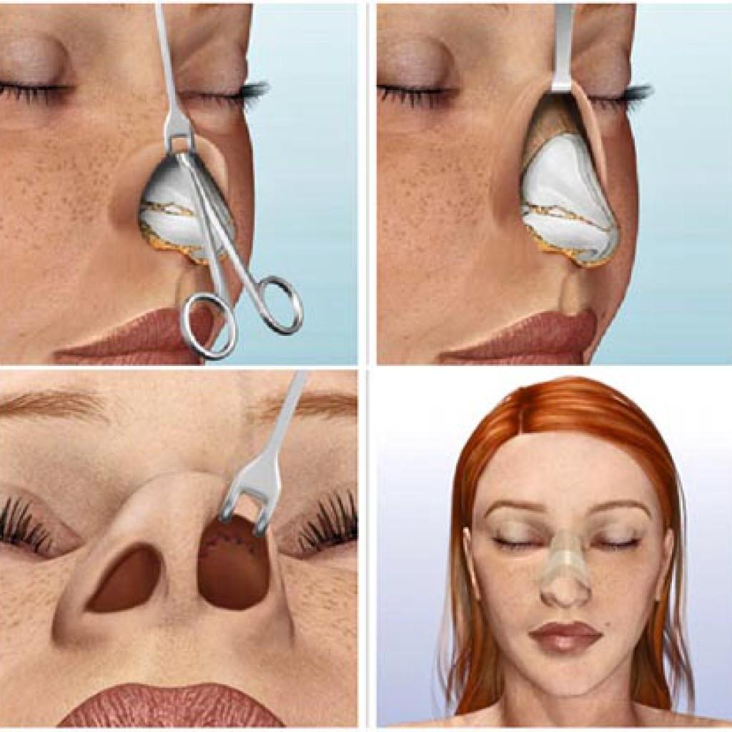 Ринопластика носа без операции