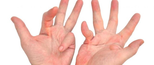 Что такое контрактура мышц: причины, симптомы, лечение