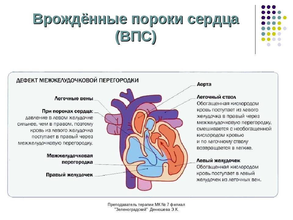 Порок сердца — что это, виды, причины, признаки, симптомы, лечение и прогноз