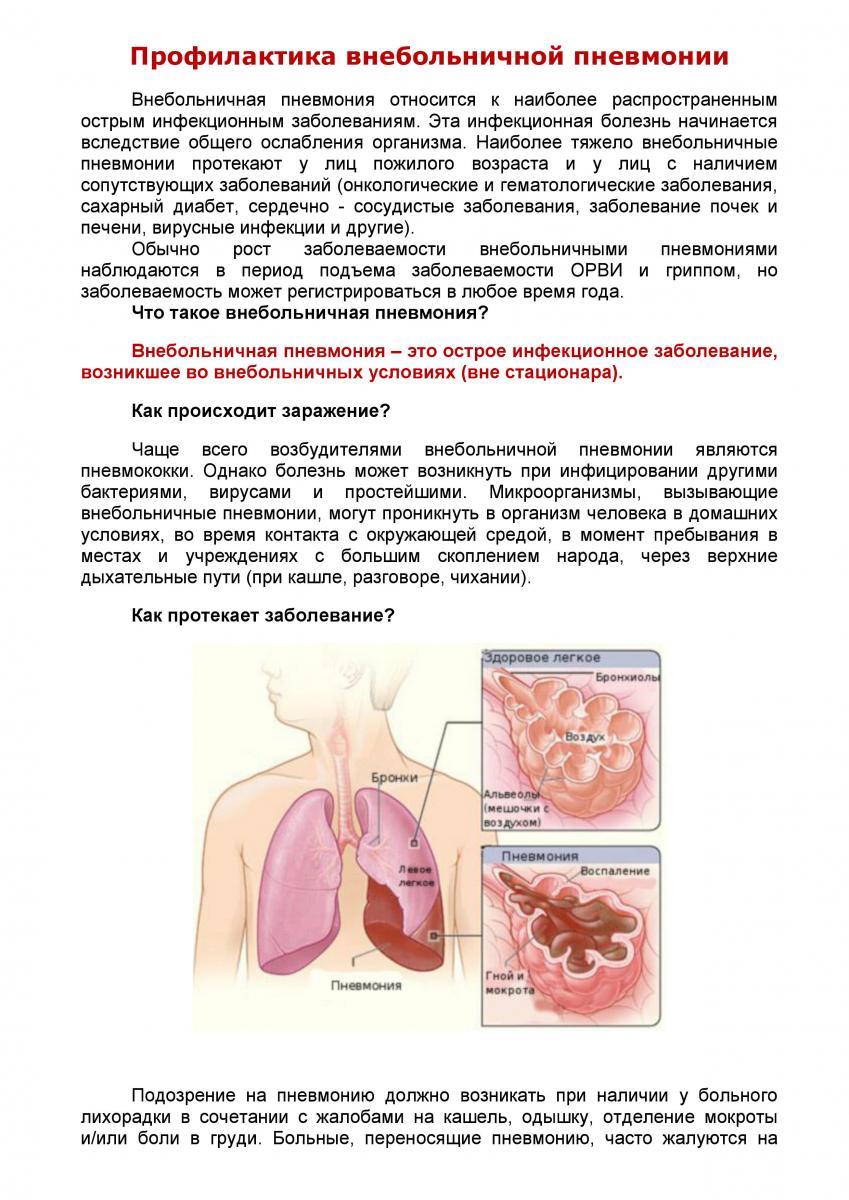 Что это такое внебольничная пневмония: возбудители и лечение