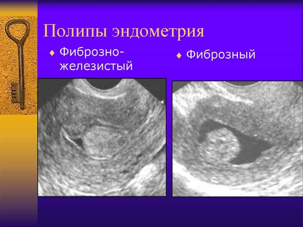 Полипы в матке — от чего появляются, чем опасны, а также отличия полипа от миомы