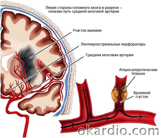 Цереброваскулярная болезнь: что это такое, симптомы и лечение