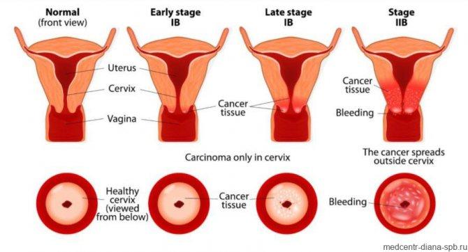 Симптомы эрозии шейки матки: какими признаками чаще всего проявляет себя данная патология