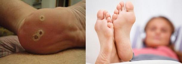 Шипица на ноге: как вывести, фото, лечение в домашних условиях