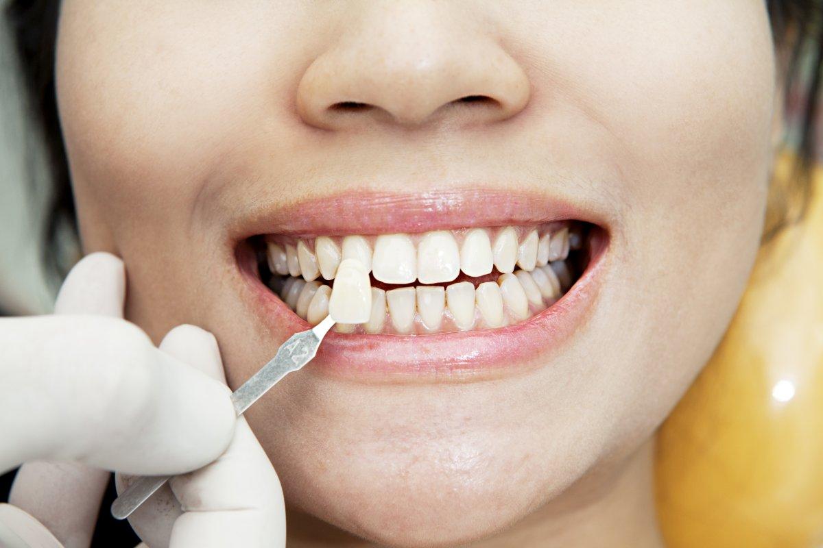 Виниры для зубов - что это и зачем? сколько стоят виниры и чем отличаются
