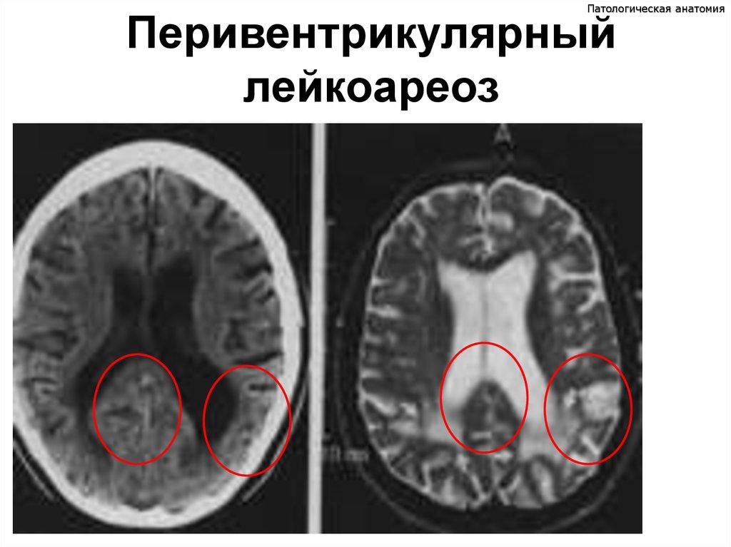 Невыраженный лейкоареоз - wikisekurs.ru