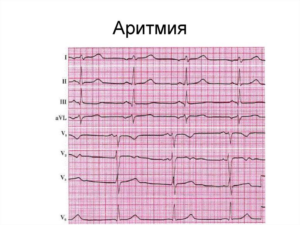 Аритмия сердца: что это такое и как лечить?