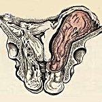 Параметрит - симптомы, лечение, диагностика параметрита