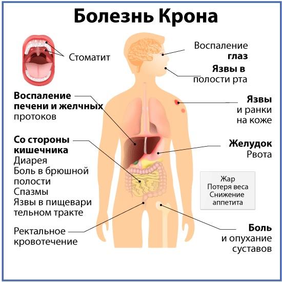 Болезнь крона – симптомы и лечение у взрослых, клинические рекомендации, прогноз жизни. что такое болезнь крона?