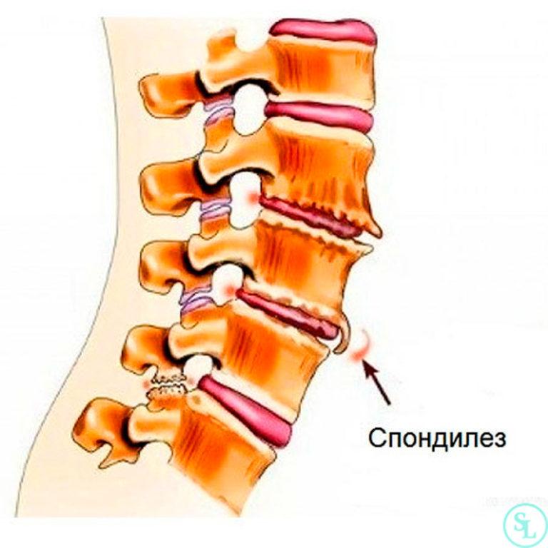 Деформирующий спондилез шейного отдела позвоночника: симптомы, лечение