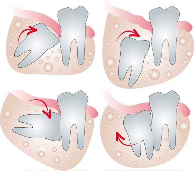 Зуб мудрости не прорезался: причины и показания к удалению - много зубов