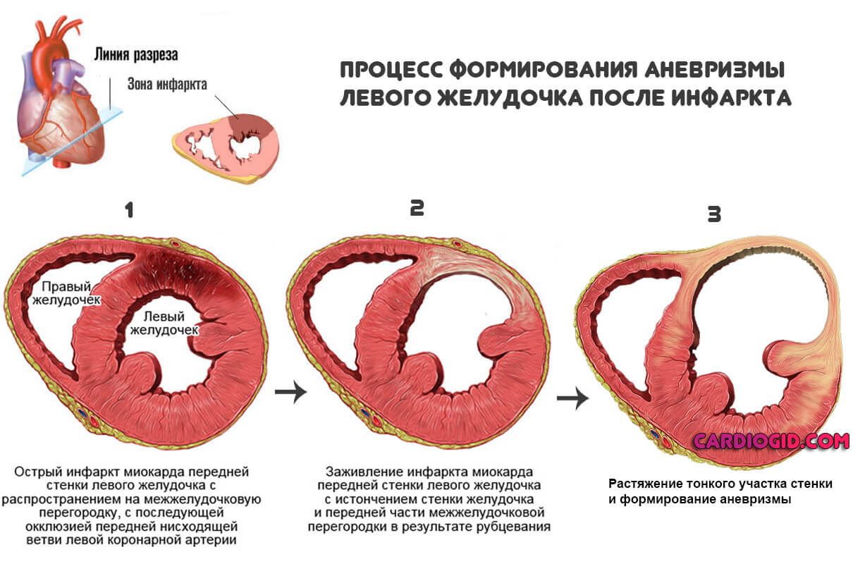 Из-за чего развивается аневризма аорты сердца и какие ее основные симптомы?