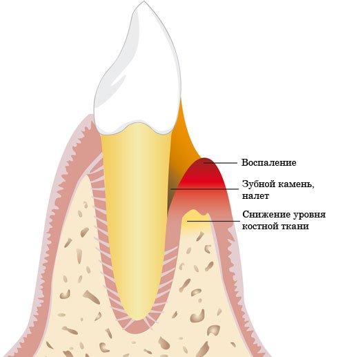Пародонтит и пародонтоз: фото, симптомы, особенности лечения
