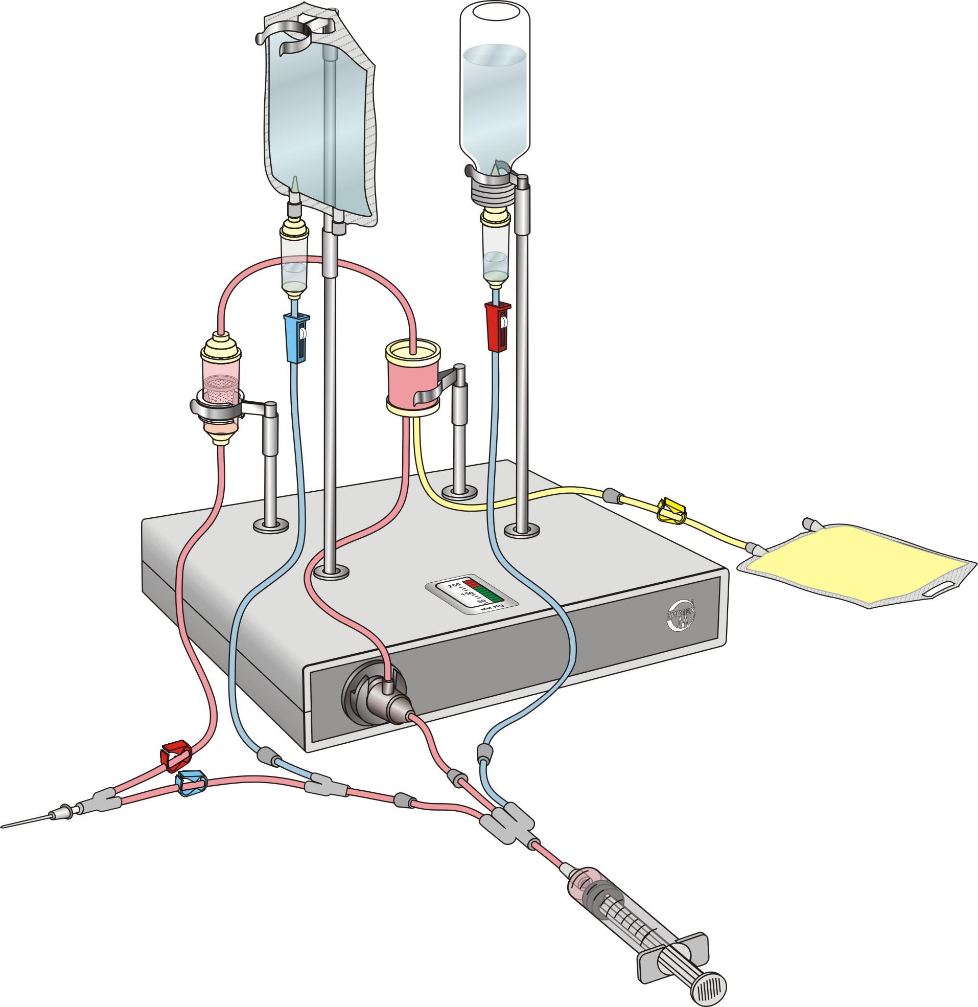 Восстановительная медицина - мембранный плазмаферез  – компания л-мед