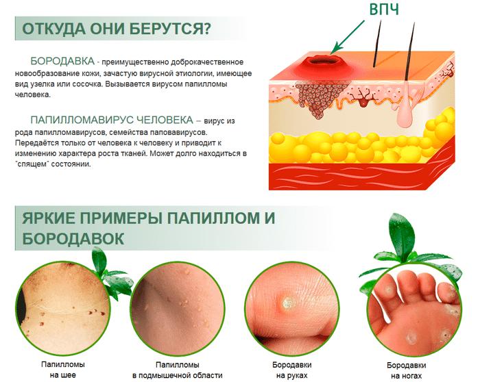 Вирус папилломы шейки матки: информация, которую должна знать каждая женщина