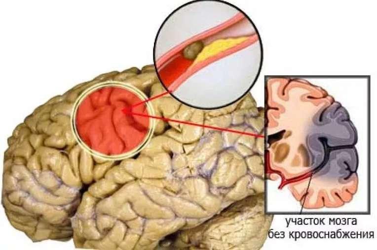 Ишемический инсульт: причины. симптомы, последствия и лечение