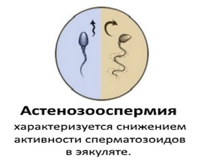 Астенозооспермия – лечение, препараты, причины возникновения