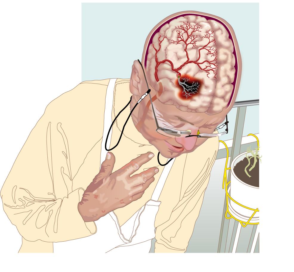 Апоплексический удар (хватил кондратий): суть термина, история, лечение