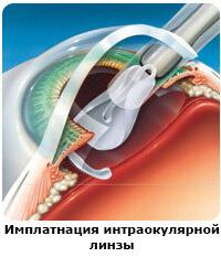 Факосклероз хрусталика глаза - что это, причины и лечение