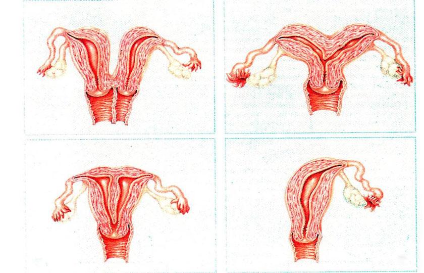 Двурогая матка: что это такое, можно ли родить с этой патологией, каковы ее причины?