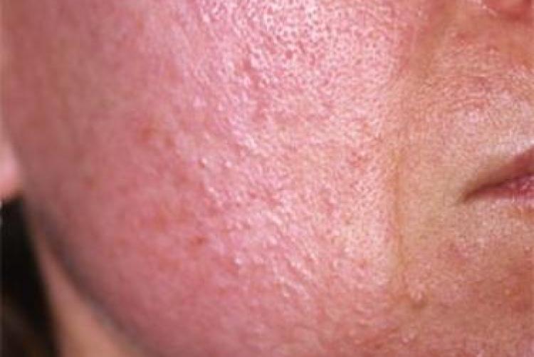 Клещ демодекс на лице: симптомы и лечение, как избавиться, препараты